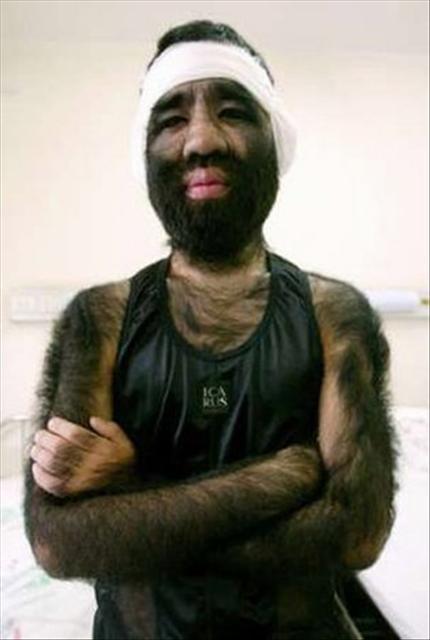 'Maymun adam'a estetik