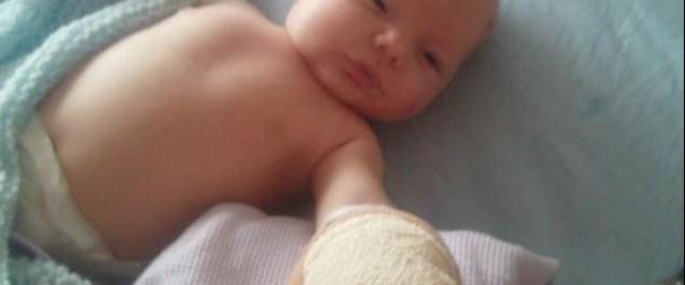 Tilki 5 haftalık bebeğin kafasını ısırdı
