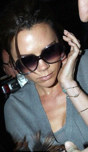 Victoria Beckham'ın kulak oynama hastalığı