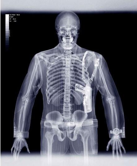 X-Ray sanatı